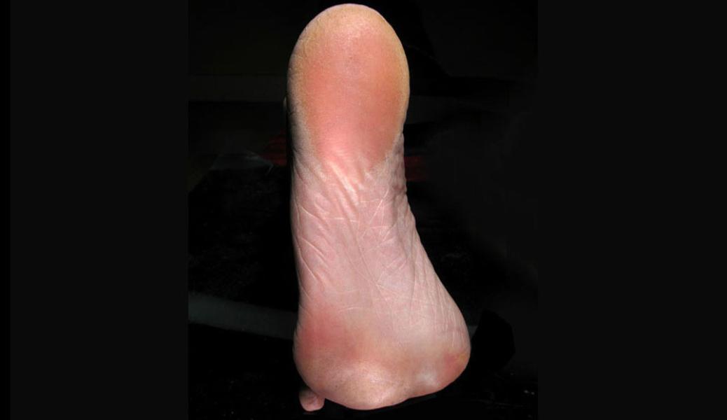 feet 10